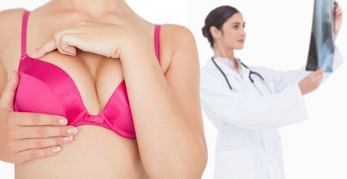 Claves para un diagnóstico precoz del cáncer de mama